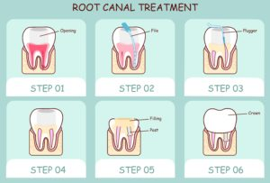 Relieve pain and infection with comfortable root canal therapy from Dr. James Geer, endodontist in Tomball. Read the details of this reliable restorative treatment.