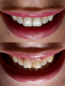 Have tooth issues that braces just won't fix? Veneers in Tomball are the perfect solution with Dr. James Geer.