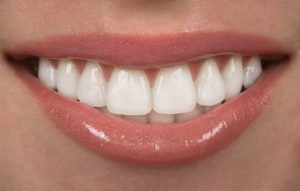 Get a flawless smile with porcelain veneers in Tomball.