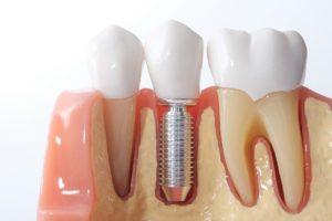 Model of dental implant