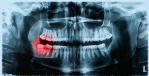 x-ray showing crooked wisdom tooth