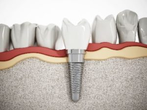 Model of an implant in a lower jaw