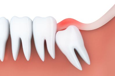 Illustration of an impacted wisdom tooth