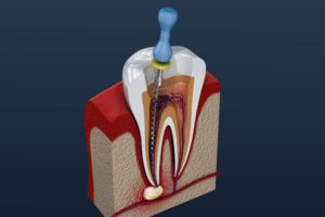Digital model of a root canal in Tomball.