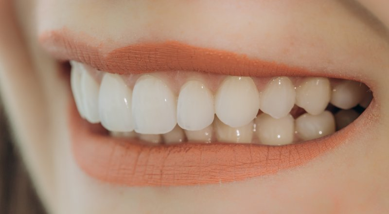 Woman with porcelain veneers in Tomball